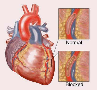 Coronary Arterery Disease